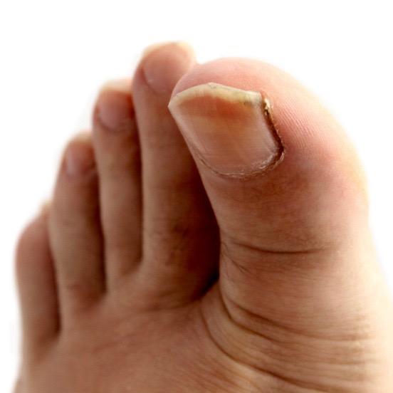 desinflamar uńas enterradas
